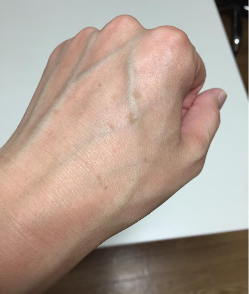 手の甲のシミ