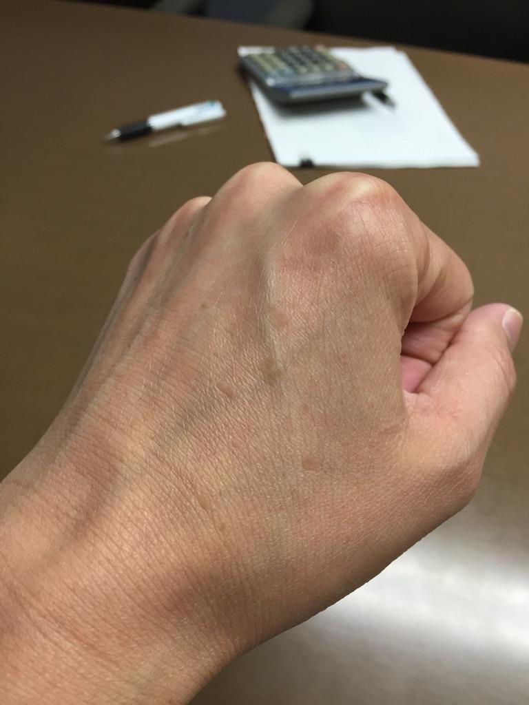 1ヶ月「水素水」を飲む続けたら手の甲のシミが薄くなって来た!